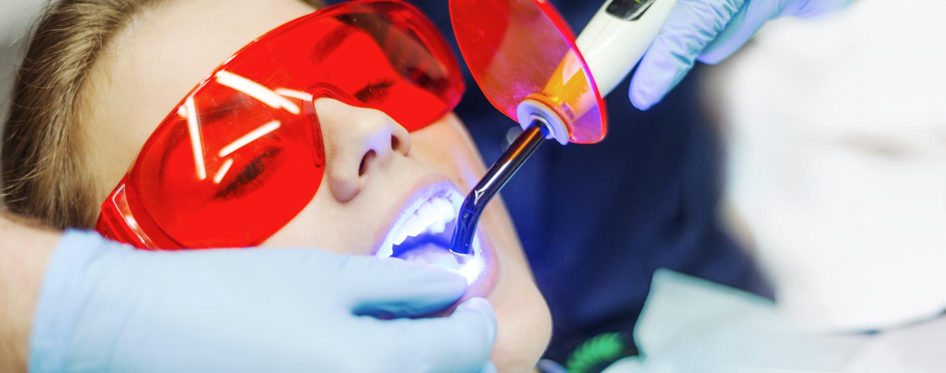 Zahnarztpraxis Detzel – Ihre Zahnärzte in Weingarten! - Bleaching 1